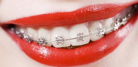 ortodonzia-1